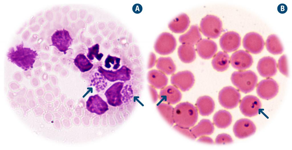 Estadios parasitarios Theileria annulata