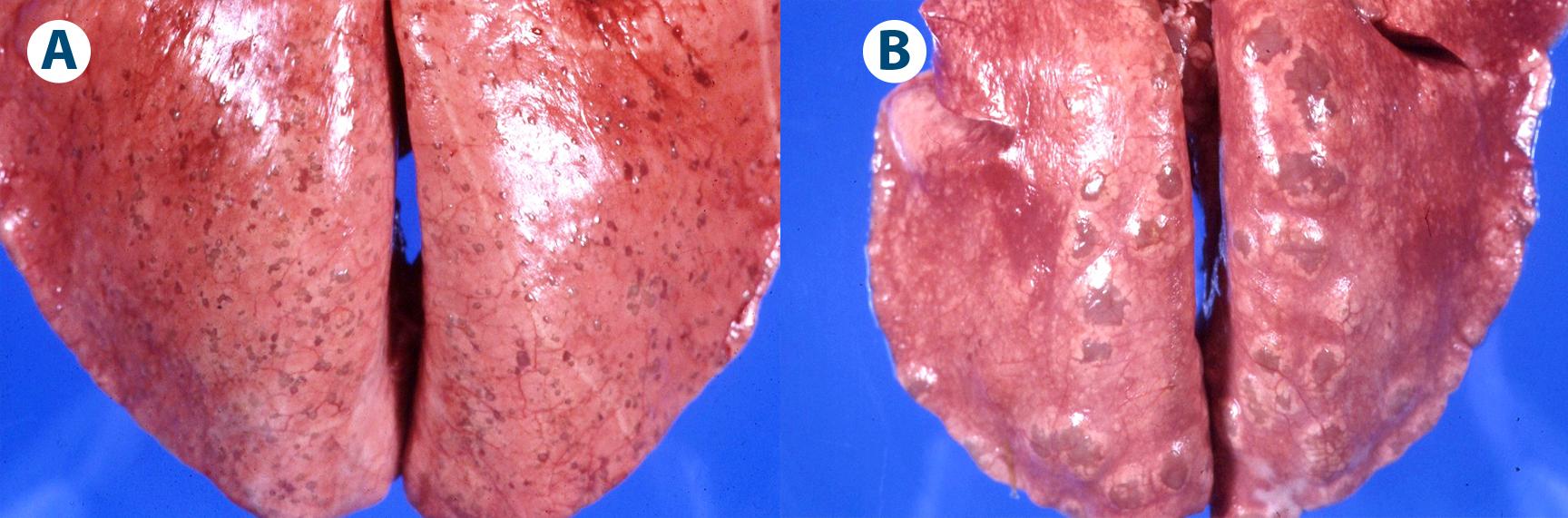 nódulos verminosos y (B) nódulos de cría de protostrongílidos