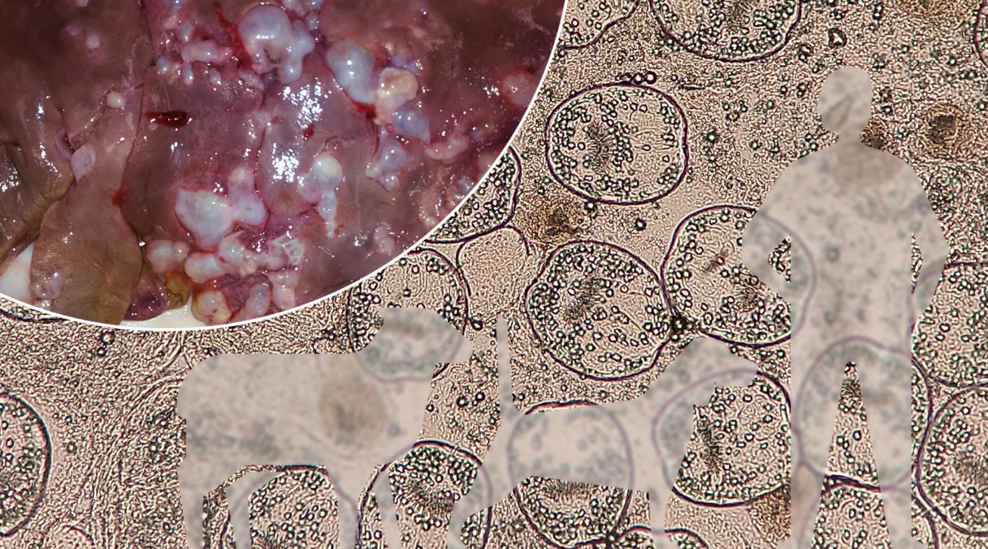 El parásito del mes: <em>Echinococcus granulosus</em> y la hidatidosis